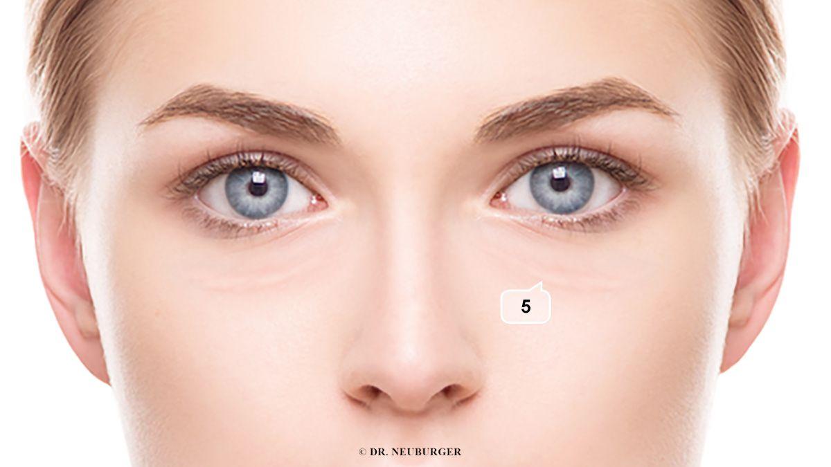 Falten unter dem Auge, von der Augenmitte nach außen gelegt, groß, langgezogen und die Oberhaut ist mit Flüssigkeit aufgefüllt