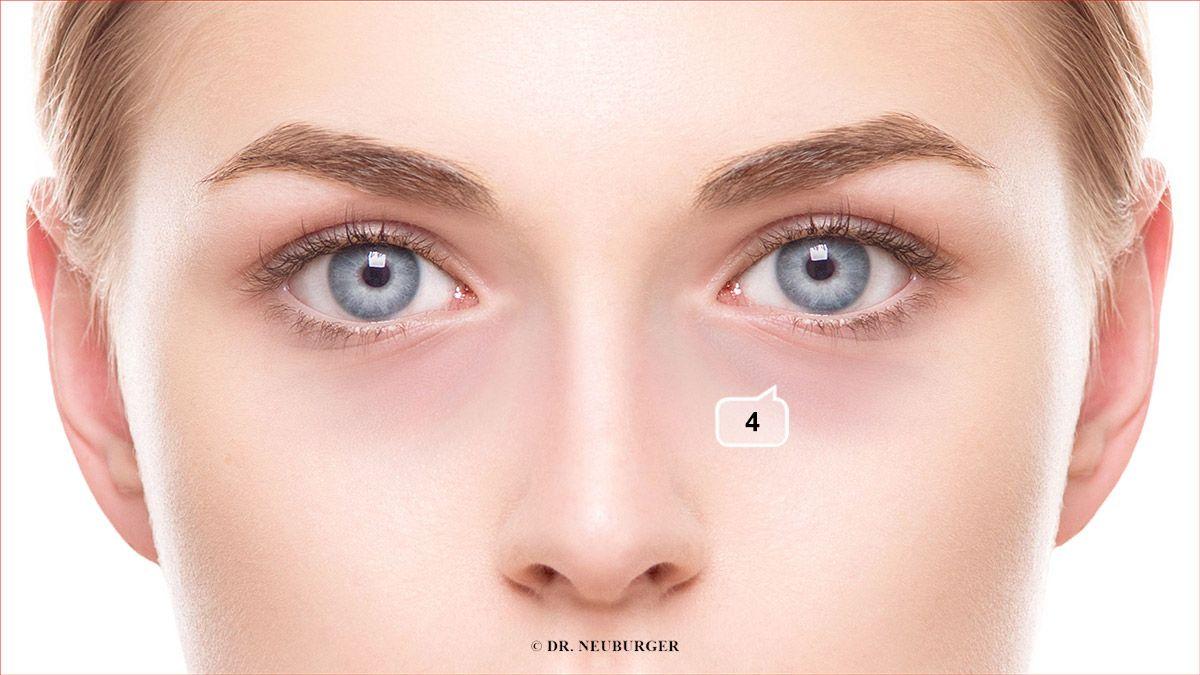 Verfärbung: bläulich, lila, rötlich (durchscheinend sanft), im Feld unterhalb Auge, Nasennähe oder rund ums Auge