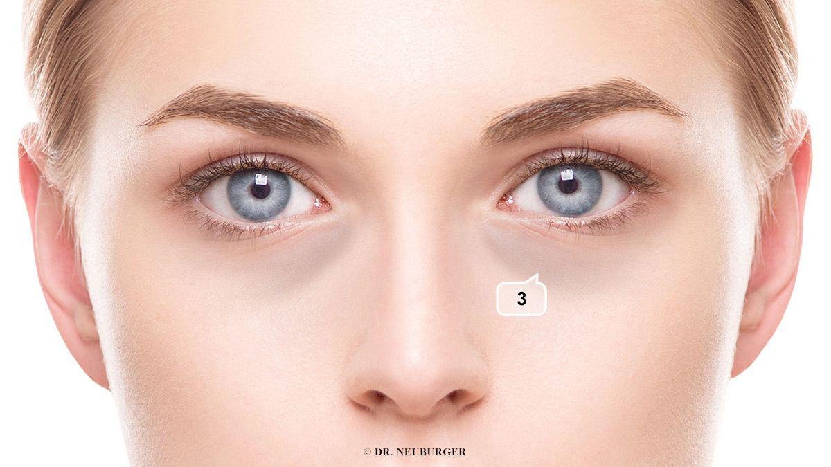 Verfärbung: düster, dunkel im Feld unterhalb Auge, Nasennähe, oder rund ums Auge