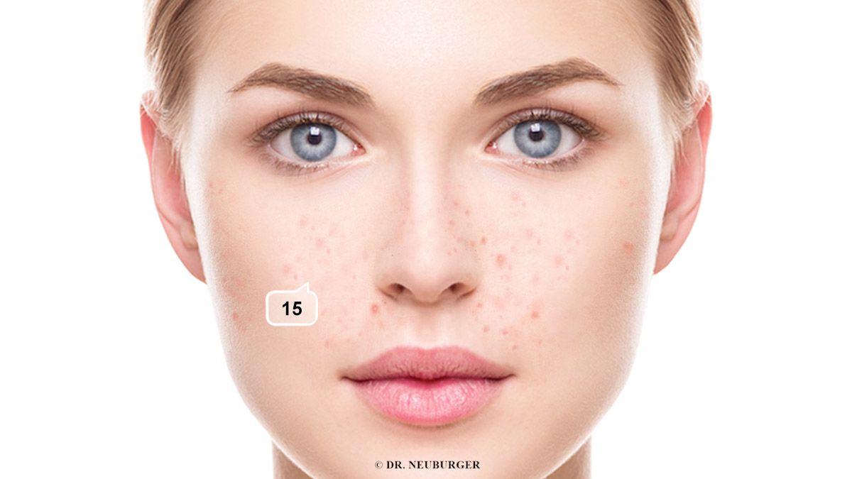 Akne Wangen und Nase - auch Rosacea (immer mit Couperose)
