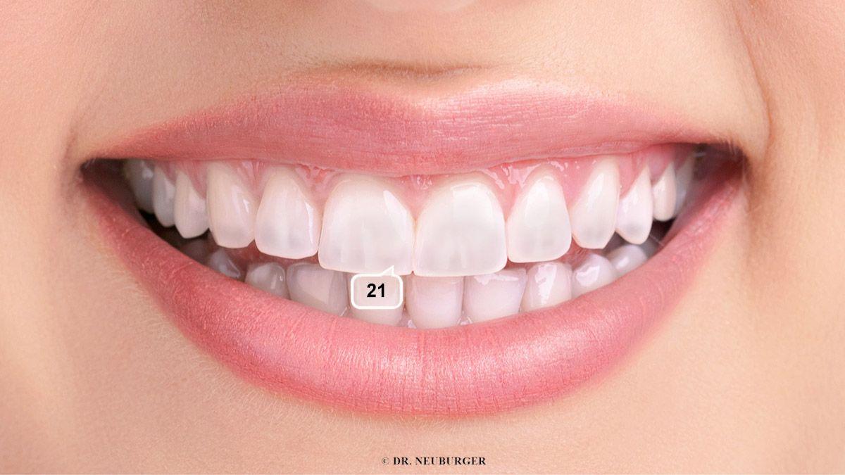 Flecken auf Zähnen und Nägel