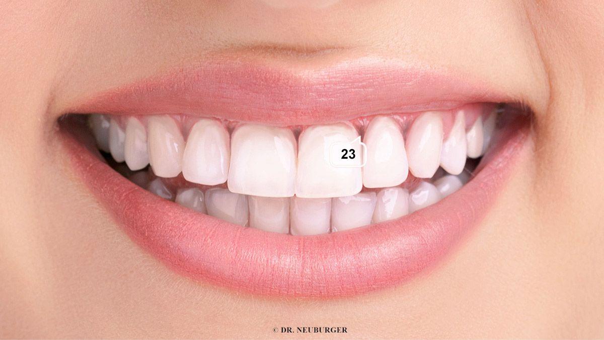 Zahnfleischschwund - Paradontose und Paradontitis