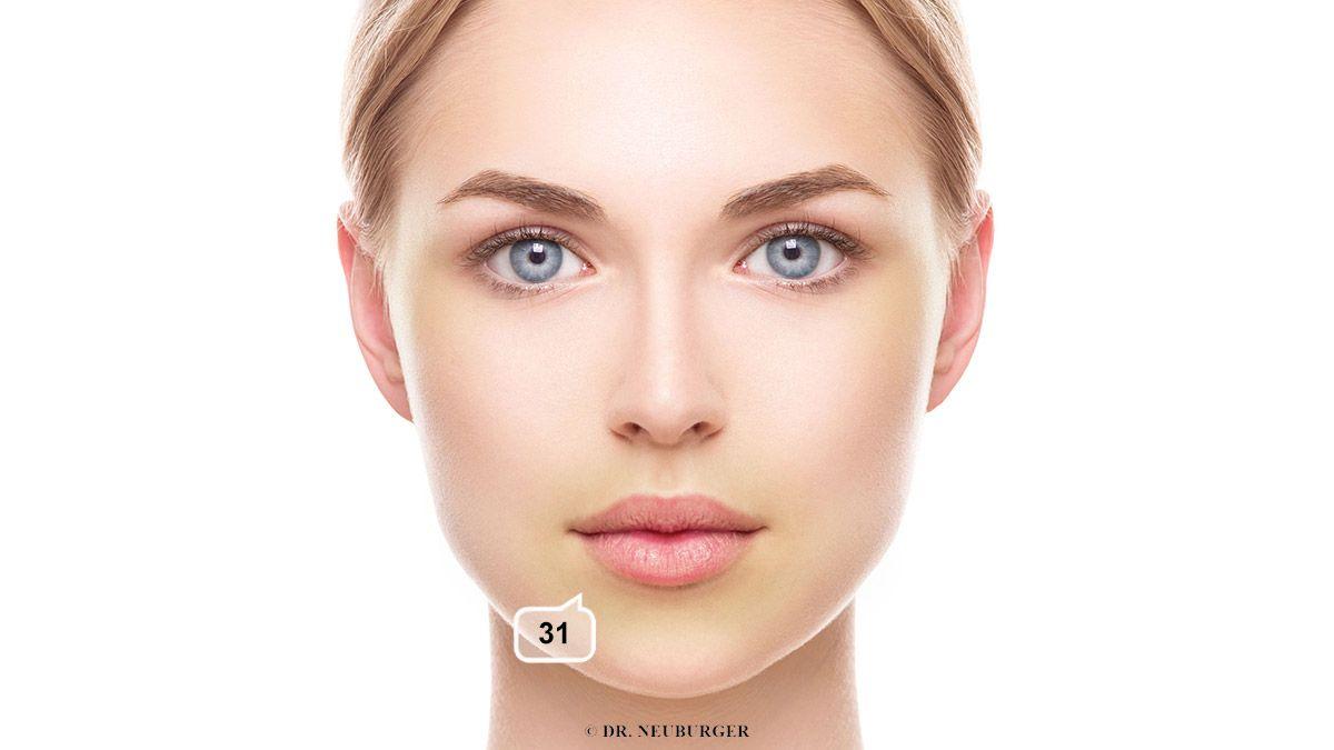 Verfärbung: bräunlich, gelblich um das Kinn, den Mund, oder im ganzen Gesicht